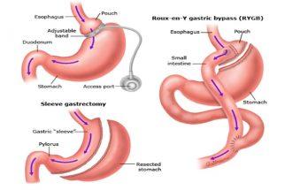 bariatric procedures